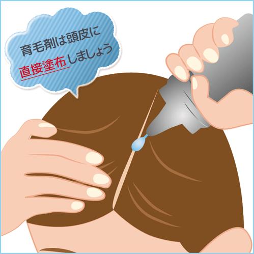 育毛剤は頭皮に「直接塗布」しましょう